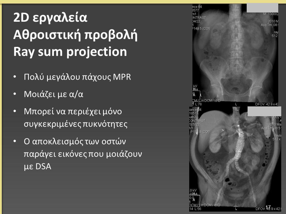 Πολύ μεγάλου πάχους MPR Μοιάζει με α/α Μπορεί να περιέχει μόνο συγκεκριμένες πυκνότητες Ο αποκλεισμός των οστών παράγει εικόνες που μοιάζουν με DSA 17 2D εργαλεία Αθροιστική προβολή Ray sum projection