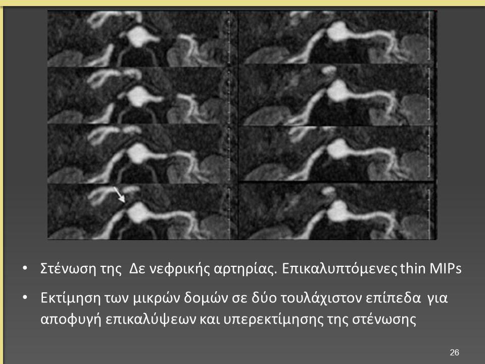 Στένωση της Δε νεφρικής αρτηρίας. Επικαλυπτόμενες thin MIPs Εκτίμηση των μικρών δομών σε δύο τουλάχιστον επίπεδα για αποφυγή επικαλύψεων και υπερεκτίμ