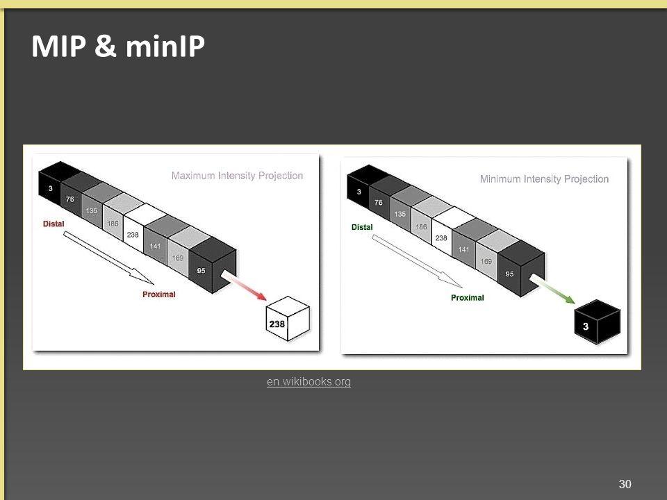 ΜΙΡ & minIP 30 en.wikibooks.org
