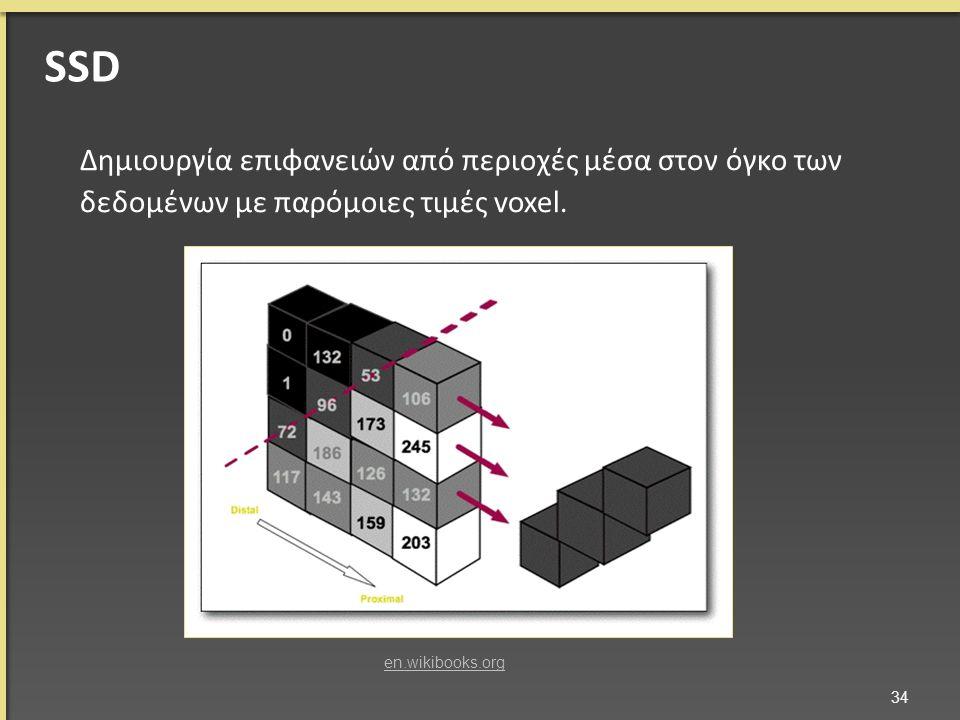 SSD Δημιουργία επιφανειών από περιοχές μέσα στον όγκο των δεδομένων με παρόμοιες τιμές voxel.