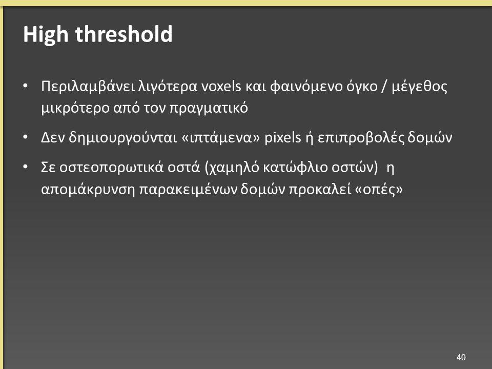 Περιλαμβάνει λιγότερα voxels και φαινόμενο όγκο / μέγεθος μικρότερο από τον πραγματικό Δεν δημιουργούνται «ιπτάμενα» pixels ή επιπροβολές δομών Σε οστεοπορωτικά οστά (χαμηλό κατώφλιο οστών) η απομάκρυνση παρακειμένων δομών προκαλεί «οπές» 40 High threshold