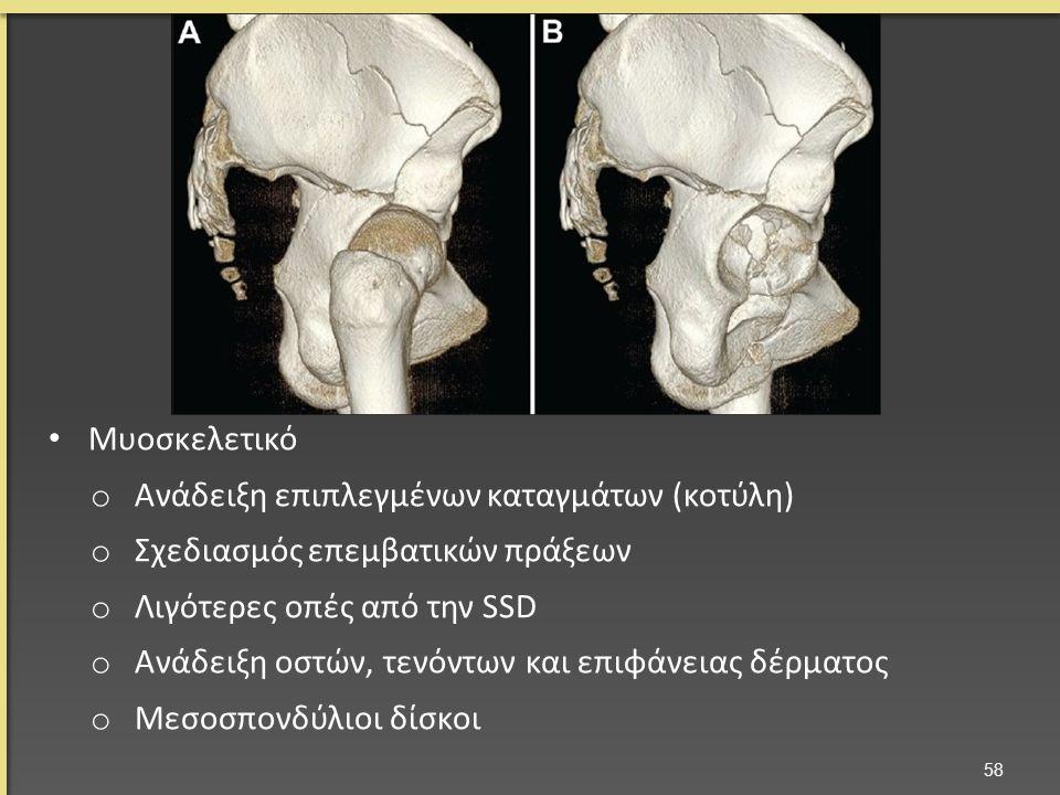 Μυοσκελετικό o Ανάδειξη επιπλεγμένων καταγμάτων (κοτύλη) o Σχεδιασμός επεμβατικών πράξεων o Λιγότερες οπές από την SSD o Ανάδειξη οστών, τενόντων και επιφάνειας δέρματος o Μεσοσπονδύλιοι δίσκοι 58