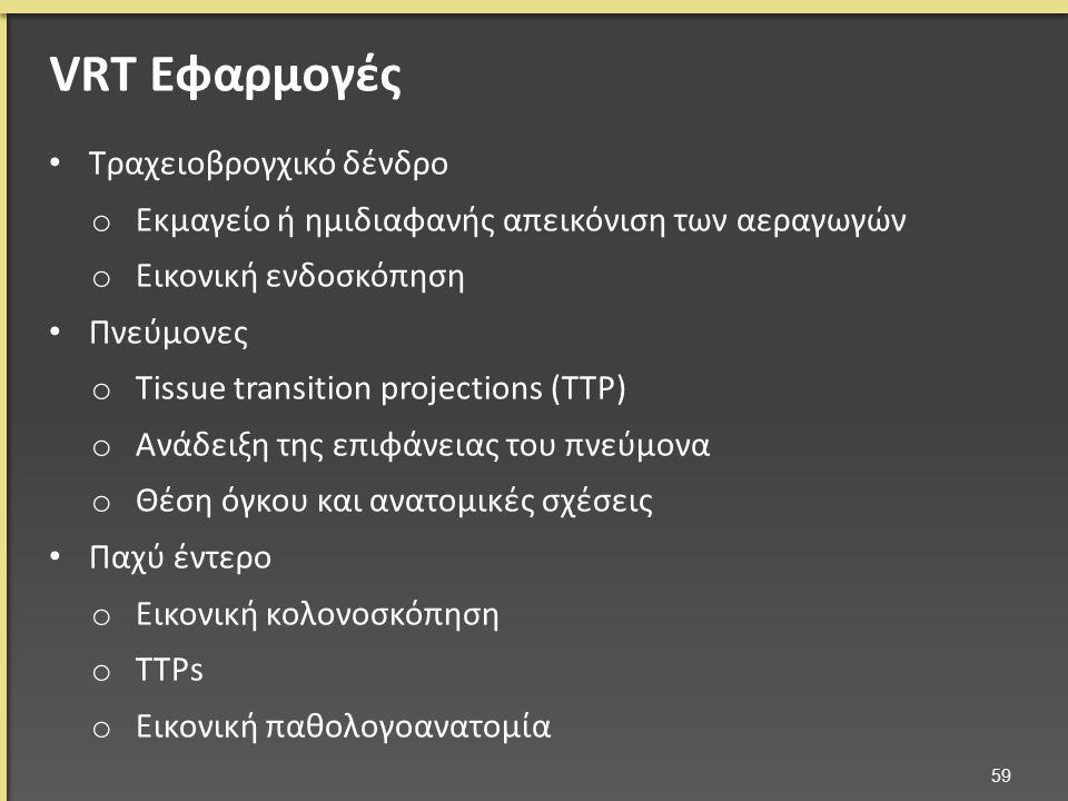 Τραχειοβρογχικό δένδρο o Εκμαγείο ή ημιδιαφανής απεικόνιση των αεραγωγών o Εικονική ενδοσκόπηση Πνεύμονες o Tissue transition projections (TTP) o Ανάδειξη της επιφάνειας του πνεύμονα o Θέση όγκου και ανατομικές σχέσεις Παχύ έντερο o Εικονική κολονοσκόπηση o TTPs o Εικονική παθολογοανατομία 59 VRT Εφαρμογές