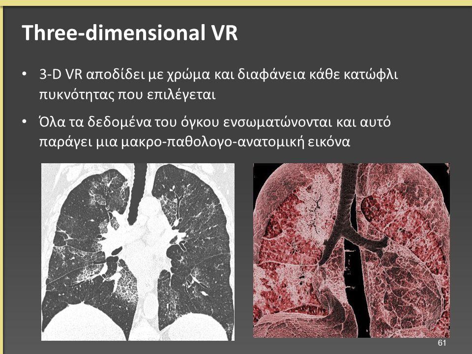 3-D VR αποδίδει με χρώμα και διαφάνεια κάθε κατώφλι πυκνότητας που επιλέγεται Όλα τα δεδομένα του όγκου ενσωματώνονται και αυτό παράγει μια μακρο-παθολογο-ανατομική εικόνα 61 Three-dimensional VR