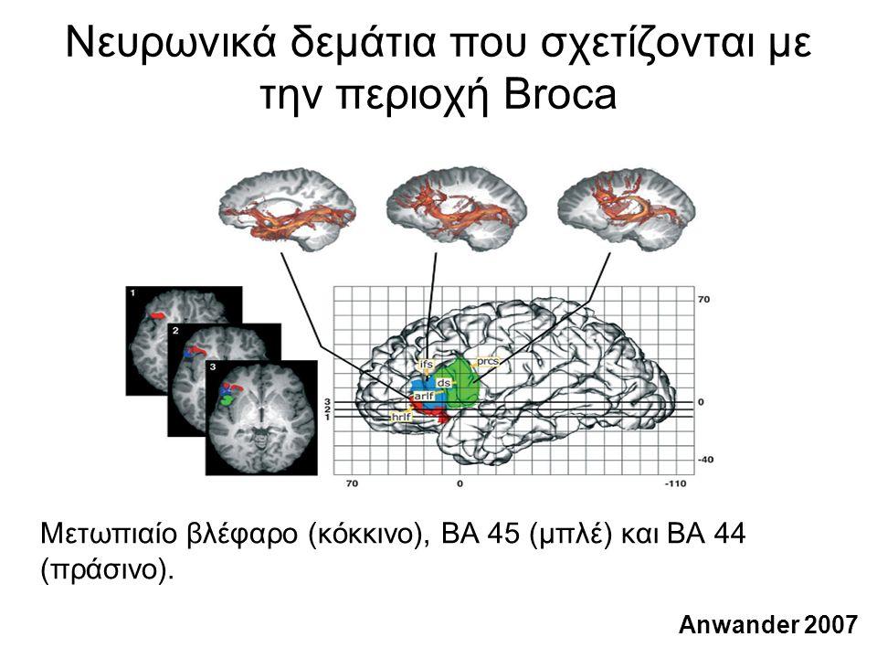 Νευρωνικά δεμάτια που σχετίζονται με την περιοχή Broca Μετωπιαίο βλέφαρο (κόκκινο), BA 45 (μπλέ) και BA 44 (πράσινο).