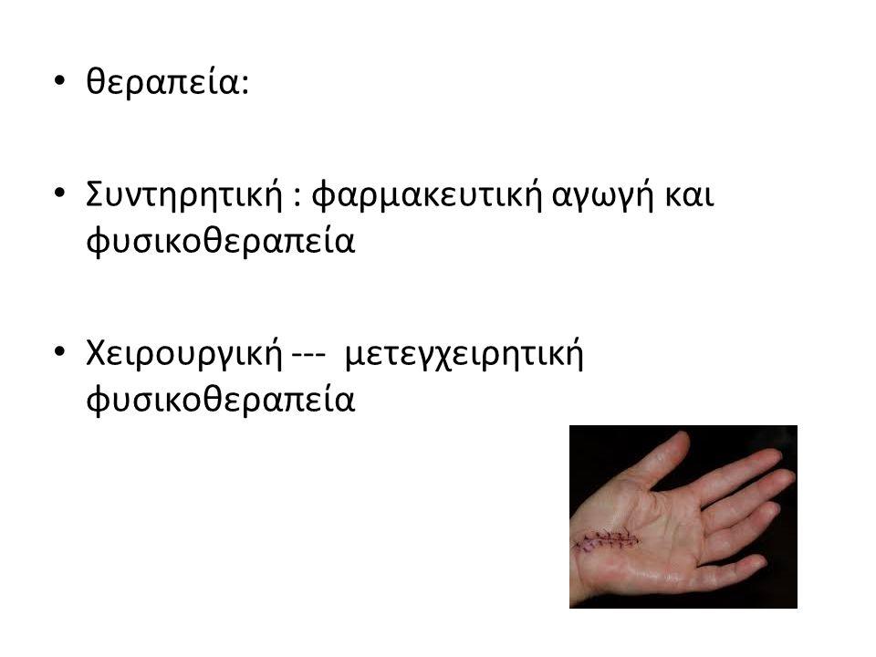 θεραπεία: Συντηρητική : φαρμακευτική αγωγή και φυσικοθεραπεία Χειρουργική --- μετεγχειρητική φυσικοθεραπεία