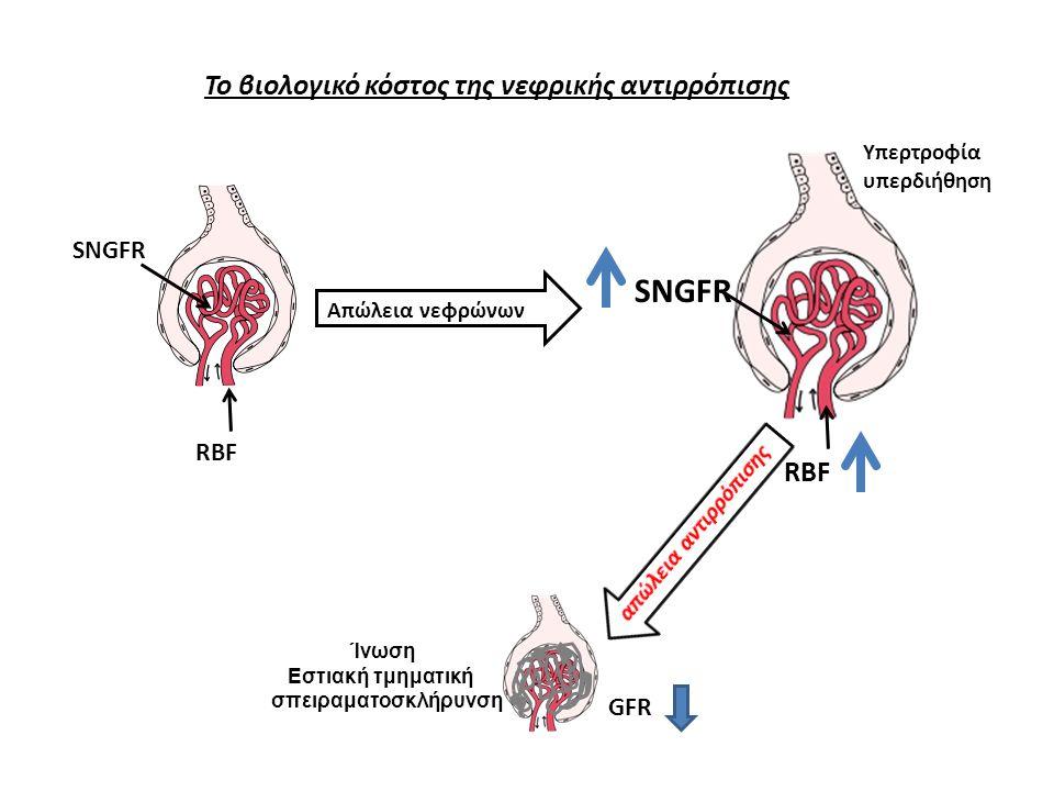 RBF SNGFR RBF SNGFR Απώλεια νεφρώνων Ίνωση Εστιακή τμηματική σπειραματοσκλήρυνση Υπερτροφία υπερδιήθηση GFR Το βιολογικό κόστος της νεφρικής αντιρρόπισης
