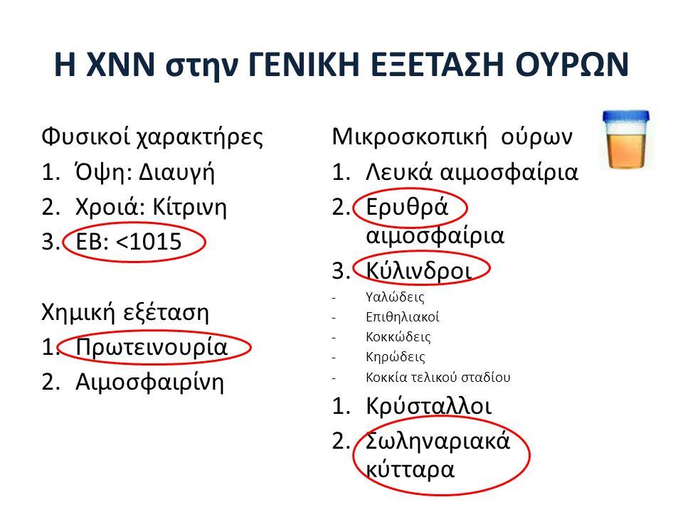 Η ΧΝΝ στην ΓΕΝΙΚΗ ΕΞΕΤΑΣΗ ΟΥΡΩΝ Φυσικoί χαρακτήρες 1.Όψη: Διαυγή 2.Χροιά: Κίτρινη 3.ΕΒ: <1015 Χημική εξέταση 1.Πρωτεινουρία 2.Αιμοσφαιρίνη Μικροσκοπική ούρων 1.Λευκά αιμοσφαίρια 2.Ερυθρά αιμοσφαίρια 3.Κύλινδροι -Υαλώδεις -Επιθηλιακοί -Κοκκώδεις -Κηρώδεις -Κοκκία τελικού σταδίου 1.Κρύσταλλοι 2.Σωληναριακά κύτταρα