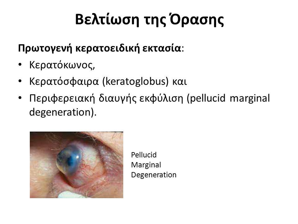 Βελτίωση της Όρασης Πρωτογενή κερατοειδική εκτασία: Kερατόκωνος, Κερατόσφαιρα (keratoglobus) και Περιφερειακή διαυγής εκφύλιση (pellucid marginal dege