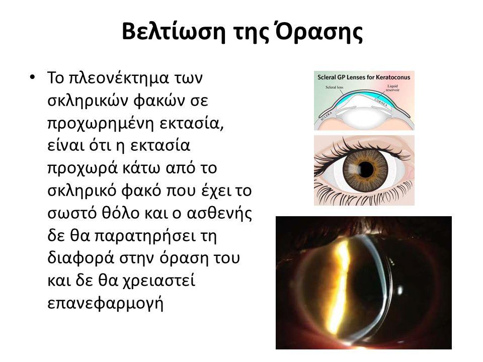 Βελτίωση της Όρασης Το πλεονέκτημα των σκληρικών φακών σε προχωρημένη εκτασία, είναι ότι η εκτασία προχωρά κάτω από το σκληρικό φακό που έχει το σωστό