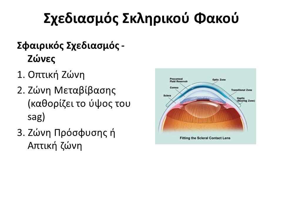 Σχεδιασμός Σκληρικού Φακού Σφαιρικός Σχεδιασμός - Ζώνες 1. Οπτική Ζώνη 2. Ζώνη Μεταβίβασης (καθορίζει το ύψος του sag) 3. Ζώνη Πρόσφυσης ή Απτική ζώνη