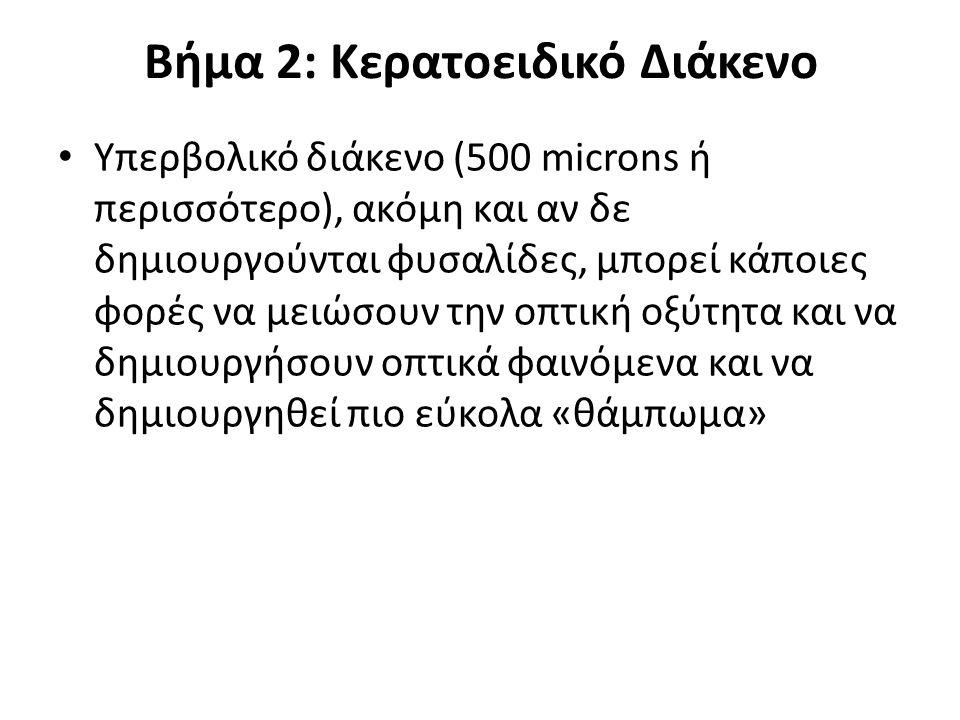 Βήμα 2: Κερατοειδικό Διάκενο Υπερβολικό διάκενο (500 microns ή περισσότερο), ακόμη και αν δε δημιουργούνται φυσαλίδες, μπορεί κάποιες φορές να μειώσου