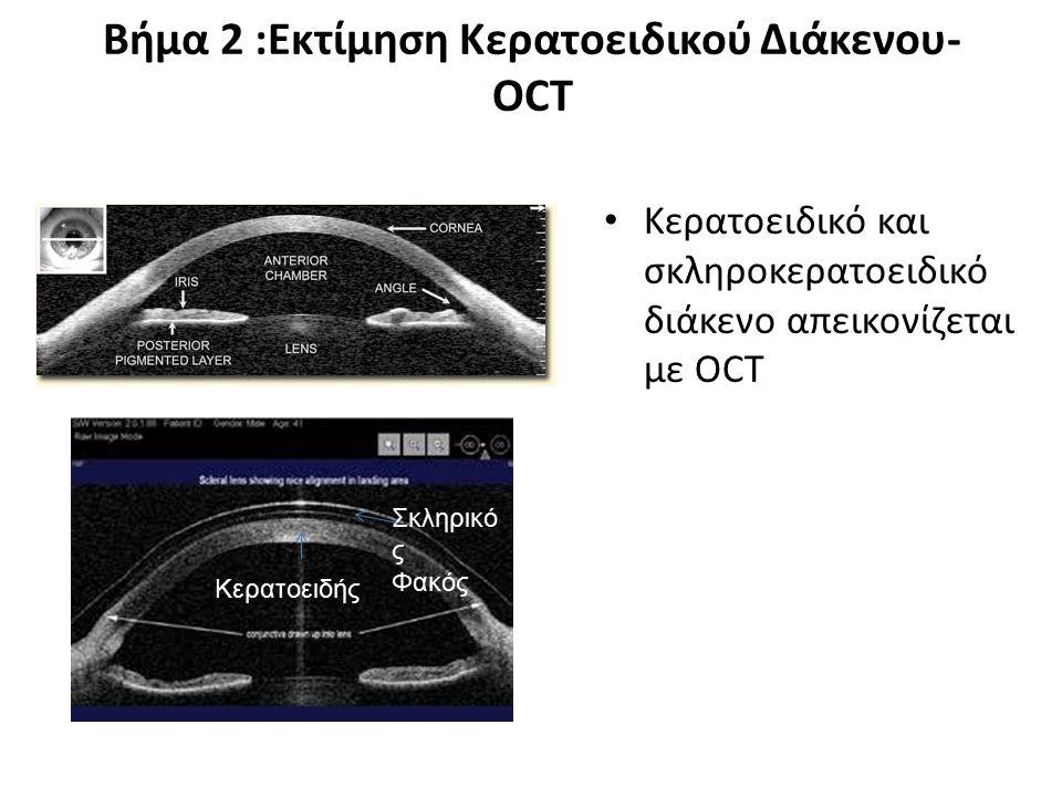 Βήμα 2 :Εκτίμηση Κερατοειδικού Διάκενου- OCT Κερατοειδικό και σκληροκερατοειδικό διάκενο απεικονίζεται με OCT Σκληρικό ς Φακός Κερατοειδής