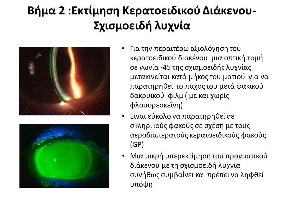 Βήμα 2 :Εκτίμηση Κερατοειδικού Διάκενου- Σχισμοειδή λυχνία Για την περαιτέρω αξιολόγηση του κερατοειδικού διακένου μια οπτική τομή σε γωνία -45 της σχ