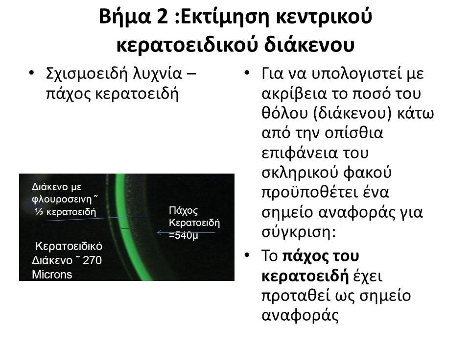 Βήμα 2 :Εκτίμηση κεντρικού κερατοειδικού διάκενου Σχισμοειδή λυχνία – πάχος κερατοειδή Για να υπολογιστεί με ακρίβεια το ποσό του θόλου (διάκενου) κάτ