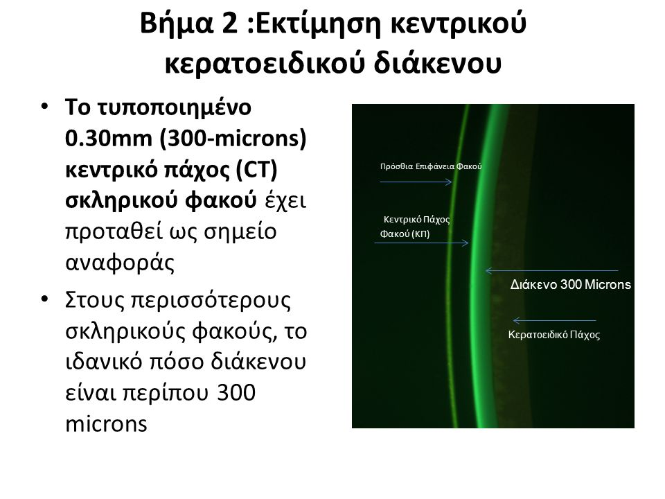 Βήμα 2 :Εκτίμηση κεντρικού κερατοειδικού διάκενου Tο τυποποιημένο 0.30mm (300-microns) κεντρικό πάχος (CT) σκληρικού φακού έχει προταθεί ως σημείο ανα
