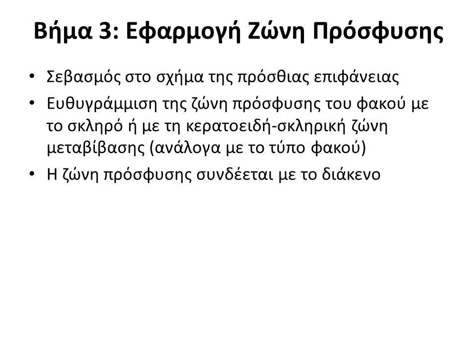 Βήμα 3: Εφαρμογή Ζώνη Πρόσφυσης Σεβασμός στο σχήμα της πρόσθιας επιφάνειας Ευθυγράμμιση της ζώνη πρόσφυσης του φακού με το σκληρό ή με τη κερατοειδή-σ