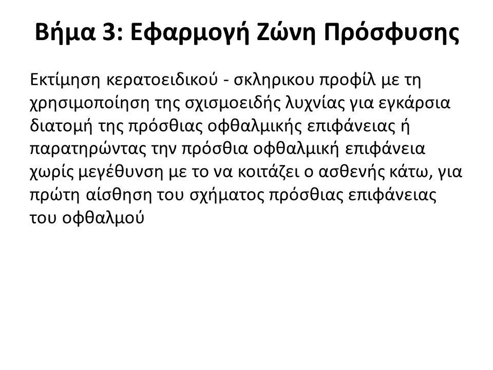 Βήμα 3: Εφαρμογή Ζώνη Πρόσφυσης Εκτίμηση κερατοειδικού - σκληρικου προφίλ με τη χρησιμοποίηση της σχισμοειδής λυχνίας για εγκάρσια διατομή της πρόσθια