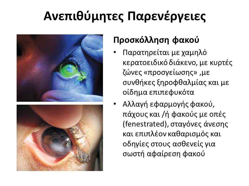 Ανεπιθύμητες Παρενέργειες Προσκόλληση φακού Παρατηρείται με χαμηλό κερατοειδικό διάκενο, με κυρτές ζώνες «προσγείωσης»,με συνθήκες ξηροφθαλμίας και με