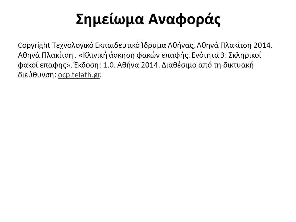 Σημείωμα Αναφοράς Copyright Τεχνολογικό Εκπαιδευτικό Ίδρυμα Αθήνας, Αθηνά Πλακίτση 2014. Αθηνά Πλακίτση. «Κλινική άσκηση φακών επαφής. Ενότητα 3: Σκλη