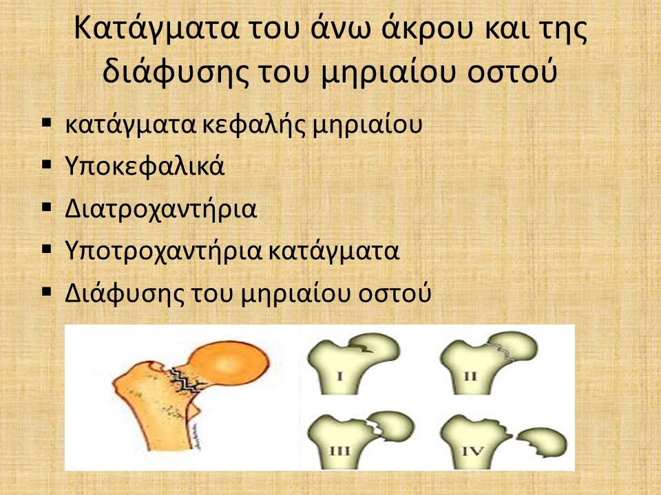 Κατάγματα του άνω άκρου και της διάφυσης του μηριαίου οστού  κατάγματα κεφαλής μηριαίου  Υποκεφαλικά  Διατροχαντήρια  Υποτροχαντήρια κατάγματα  Δ