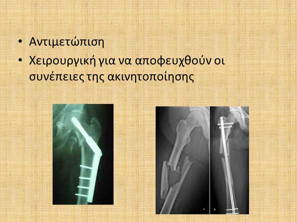 Αντιμετώπιση Χειρουργική για να αποφευχθούν οι συνέπειες της ακινητοποίησης