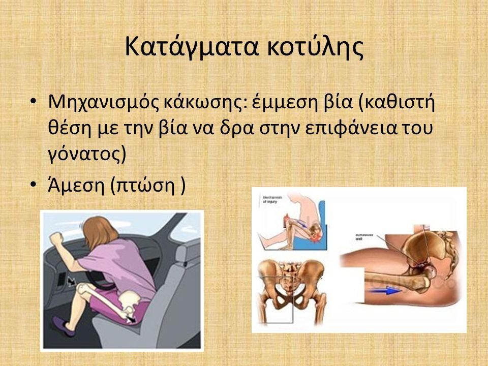 Κατάγματα κοτύλης Μηχανισμός κάκωσης: έμμεση βία (καθιστή θέση με την βία να δρα στην επιφάνεια του γόνατος) Άμεση (πτώση )