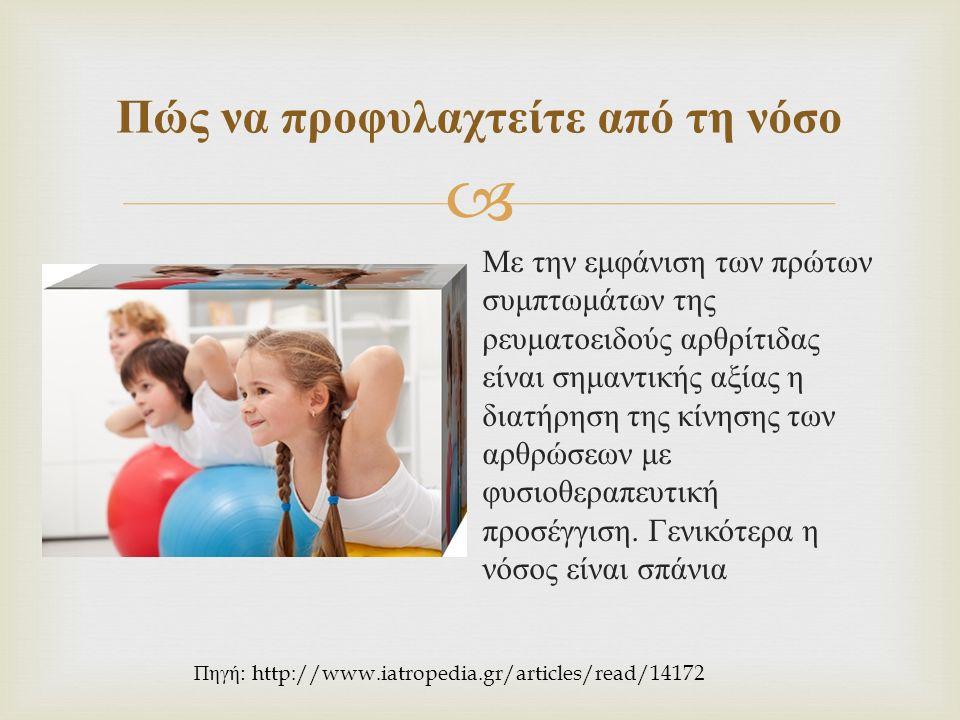  Με την εμφάνιση των πρώτων συμπτωμάτων της ρευματοειδούς αρθρίτιδας είναι σημαντικής αξίας η διατήρηση της κίνησης των αρθρώσεων με φυσιοθεραπευτική