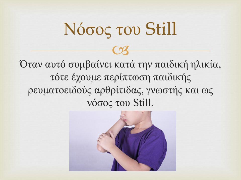  Όταν αυτό συμβαίνει κατά την παιδική ηλικία, τότε έχουμε περίπτωση παιδικής ρευματοειδούς αρθρίτιδας, γνωστής και ως νόσος του Still. Νόσος του Stil