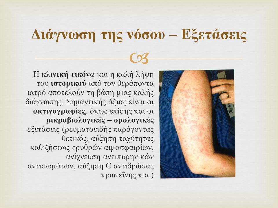  Η κλινική εικόνα και η καλή λήψη του ιστορικού από τον θεράποντα ιατρό αποτελούν τη βάση μιας καλής διάγνωσης. Σημαντικής άξιας είναι οι ακτινογραφί