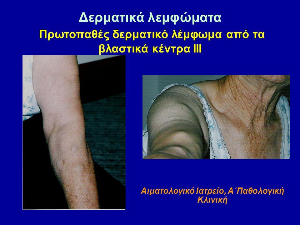 Δερματικά λεμφώματα Πρωτοπαθές δερματικό λέμφωμα από τα βλαστικά κέντρα ΙΙΙ Αιματολογικό Ιατρείο, Α΄Παθολογική Κλινική