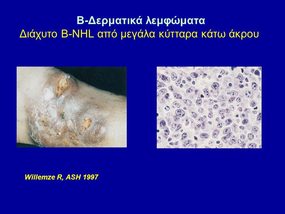 B-Δερματικά λεμφώματα Διάχυτο Β-NHL από μεγάλα κύτταρα κάτω άκρου Willemze R, ASH 1997