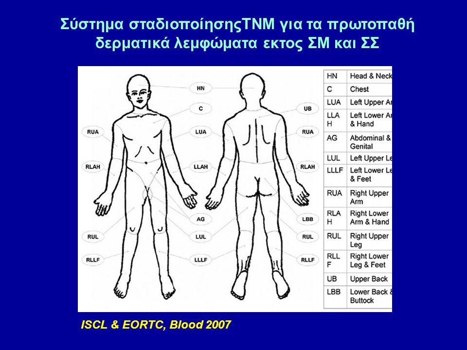 Σύστημα σταδιοποίησηςTNM για τα πρωτοπαθή δερματικά λεμφώματα εκτος ΣΜ και ΣΣ ISCL & EORTC, Blood 2007