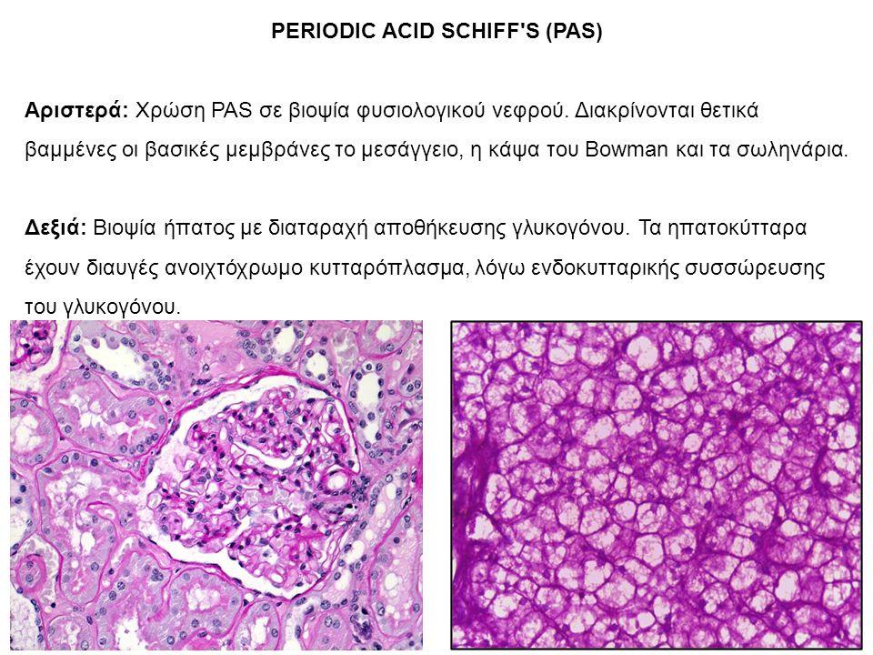 PERIODIC ACID SCHIFF S (PAS) Αριστερά: Χρώση PAS σε βιοψία φυσιολογικού νεφρού.