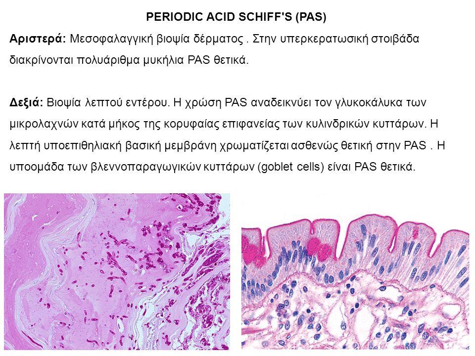 PERIODIC ACID SCHIFF S (PAS) Αριστερά: Μεσοφαλαγγική βιοψία δέρματος.