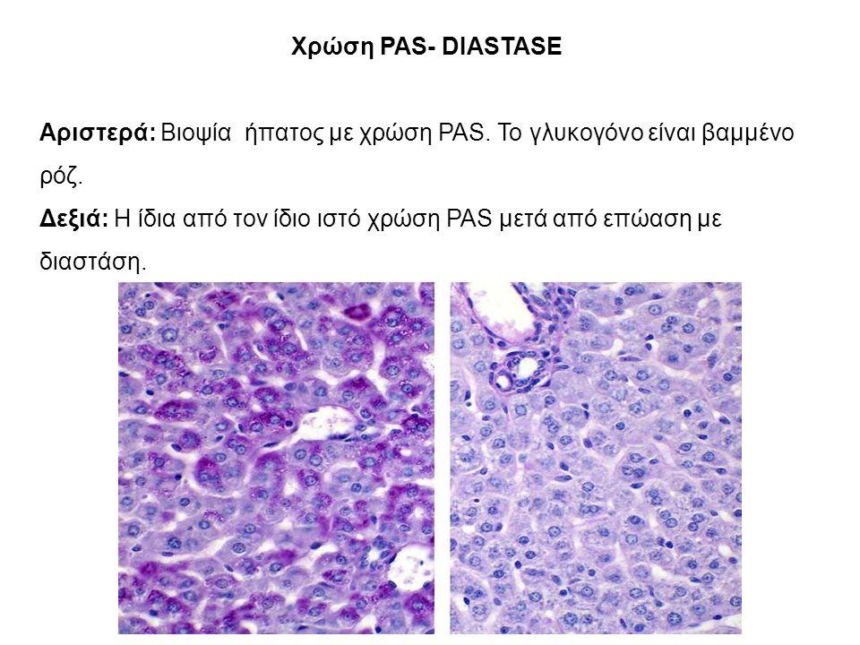 Χρώση PAS- DIASTASE Αριστερά: Βιοψία ήπατος με χρώση PAS.