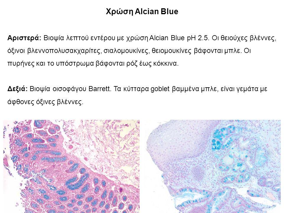 Χρώση Alcian Blue Αριστερά: Βιοψία λεπτού εντέρου με χρώση Alcian Blue pH 2.5.