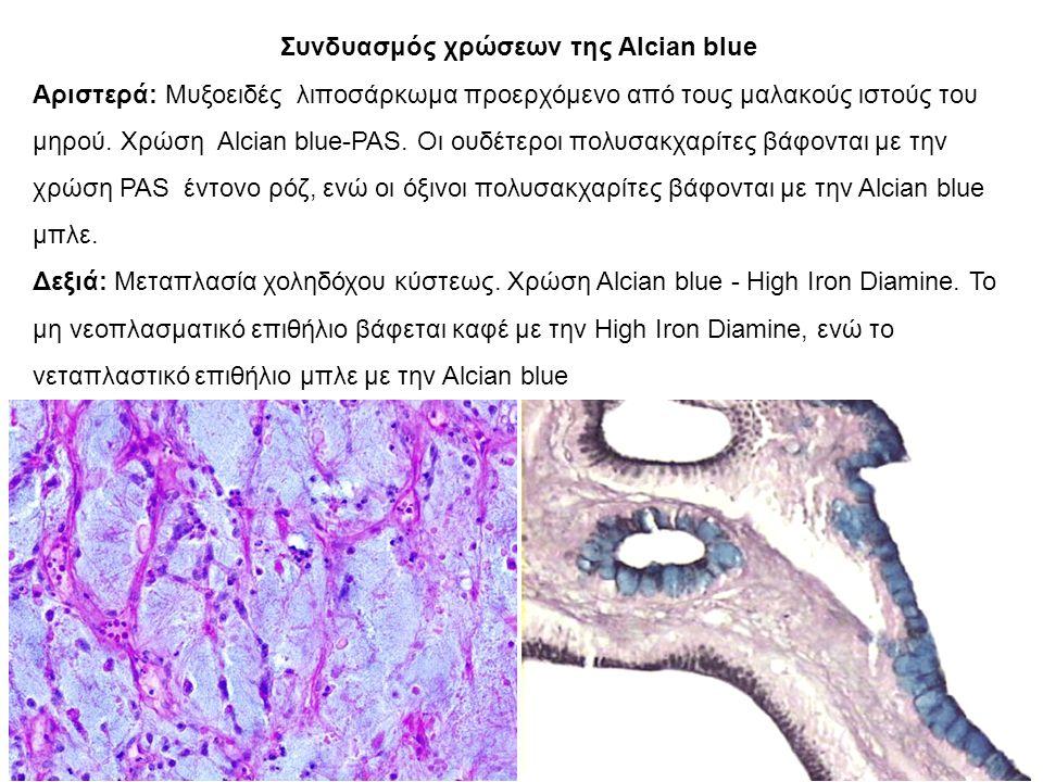 Συνδυασμός χρώσεων της Alcian blue Αριστερά: Μυξοειδές λιποσάρκωμα προερχόμενο από τους μαλακούς ιστούς του μηρού.