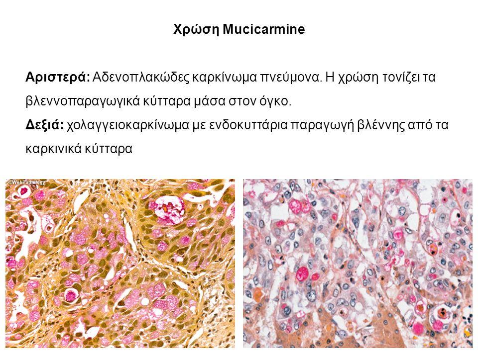 Χρώση Mucicarmine Αριστερά: Αδενοπλακώδες καρκίνωμα πνεύμονα.
