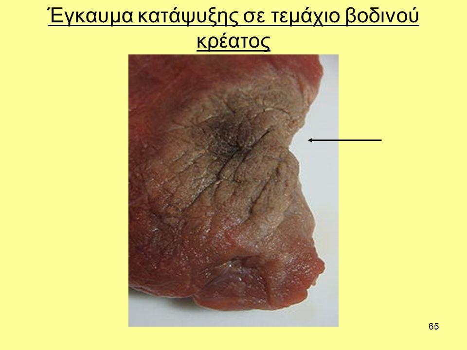 65 Έγκαυμα κατάψυξης σε τεμάχιο βοδινού κρέατος