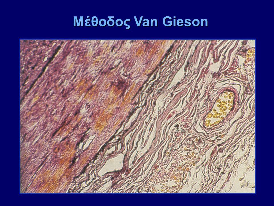 Μέθοδος Van Gieson