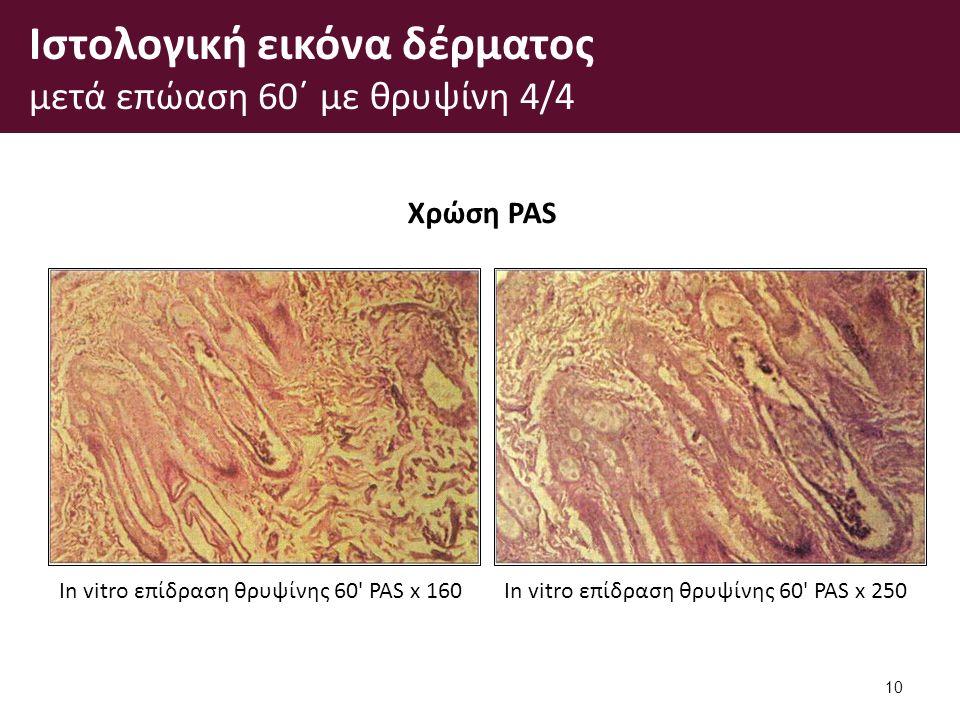 Ιστολογική εικόνα δέρματος μετά επώαση 60΄ με θρυψίνη 4/4 10 Χρώση PAS In vitro επίδραση θρυψίνης 60 PAS x 160In vitro επίδραση θρυψίνης 60 PAS x 250