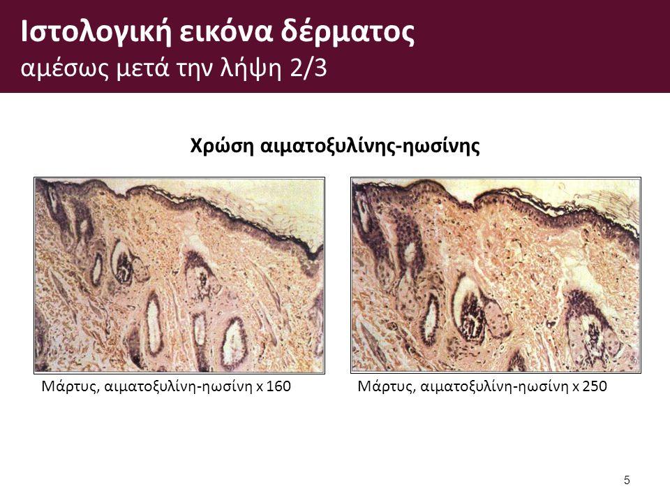 Ιστολογική εικόνα δέρματος αμέσως μετά την λήψη 2/3 5 Χρώση αιματοξυλίνης-ηωσίνης Μάρτυς, αιματοξυλίνη-ηωσίνη x 160Μάρτυς, αιματοξυλίνη-ηωσίνη x 250