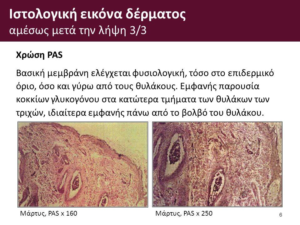 Ιστολογική εικόνα δέρματος αμέσως μετά την λήψη 3/3 Χρώση PAS Βασική μεμβράνη ελέγχεται φυσιολογική, τόσο στο επιδερμικό όριο, όσο και γύρω από τους θυλάκους.