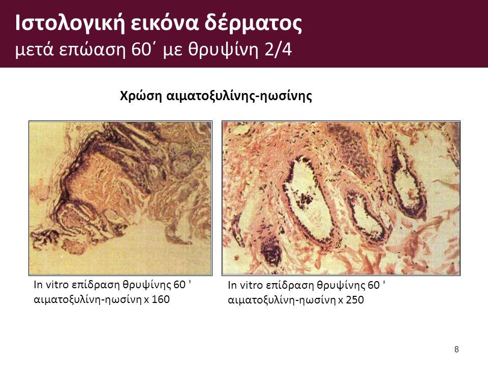 Ιστολογική εικόνα δέρματος μετά επώαση 60΄ με θρυψίνη 2/4 8 In vitro επίδραση θρυψίνης 60 αιματοξυλίνη-ηωσίνη x 160 In vitro επίδραση θρυψίνης 60 αιματοξυλίνη-ηωσίνη x 250 Χρώση αιματοξυλίνης-ηωσίνης