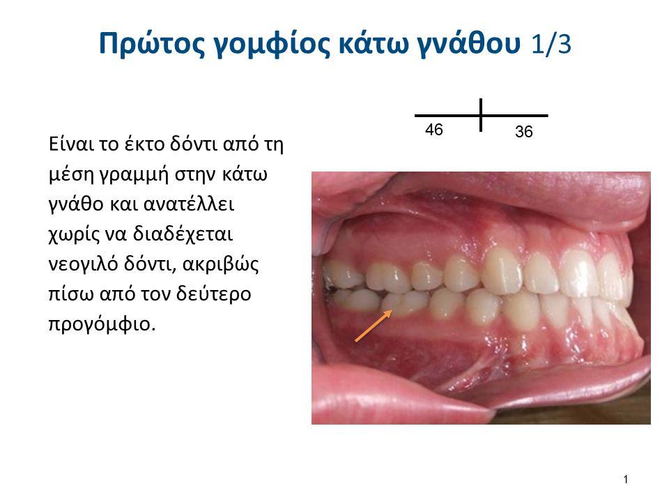 Πρώτος γομφίος κάτω γνάθου 1/3 Είναι το έκτο δόντι από τη μέση γραμμή στην κάτω γνάθο και ανατέλλει χωρίς να διαδέχεται νεογιλό δόντι, ακριβώς πίσω από τον δεύτερο προγόμφιο.