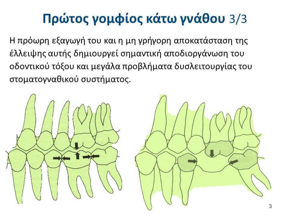 Πρώτος γομφίος κάτω γνάθου 3/3 Η πρόωρη εξαγωγή του και η μη γρήγορη αποκατάσταση της έλλειψης αυτής δημιουργεί σημαντική αποδιοργάνωση του οδοντικού