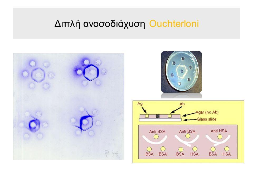 Πειραματική διαδικασία Διπλή ανοσοδιάχυση (Ouchterlony) Σε προκαλυμμένες αντικειμενοφόρους πλάκες προσθέτουμε 5 ml πυκνού άγαρ το οποίο δεν περιέχει αντιορό.
