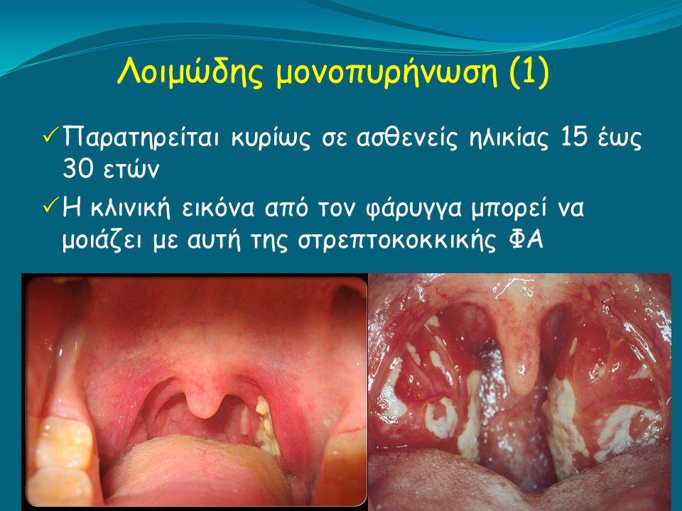 Λοιμώδης μονοπυρήνωση (1)  Παρατηρείται κυρίως σε ασθενείς ηλικίας 15 έως 30 ετών  Η κλινική εικόνα από τον φάρυγγα μπορεί να μοιάζει με αυτή της στρεπτοκοκκικής ΦΑ