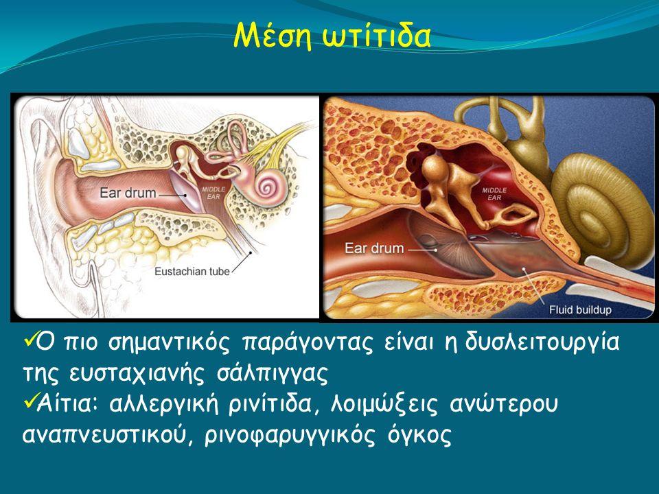 Μέση ωτίτιδα Ο πιο σημαντικός παράγοντας είναι η δυσλειτουργία της ευσταχιανής σάλπιγγας Αίτια: αλλεργική ρινίτιδα, λοιμώξεις ανώτερου αναπνευστικού, ρινοφαρυγγικός όγκος